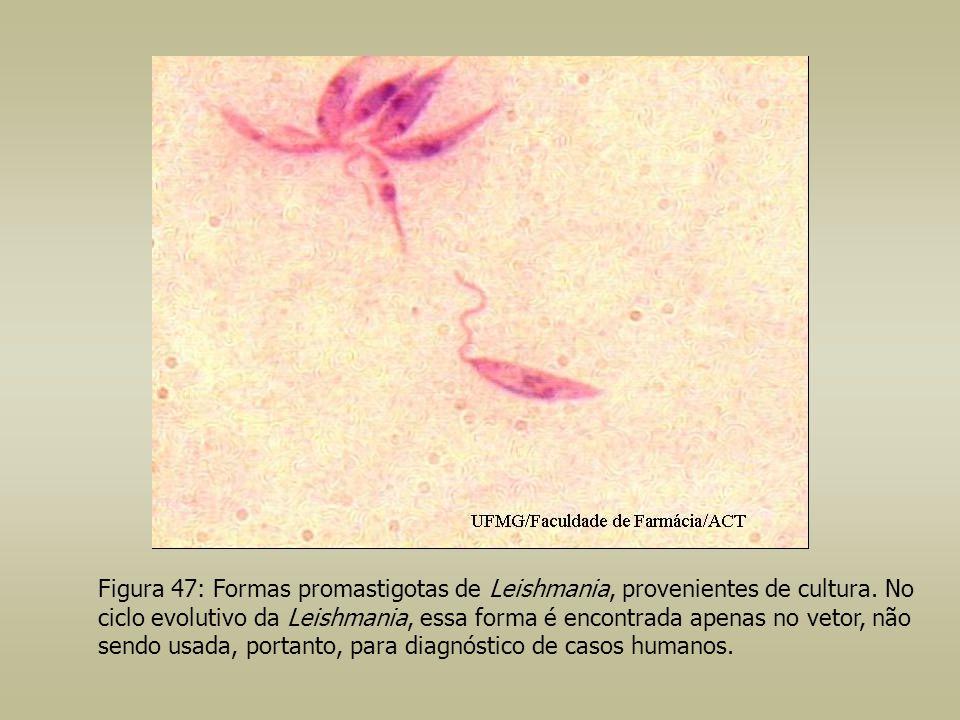 Figura 47: Formas promastigotas de Leishmania, provenientes de cultura. No ciclo evolutivo da Leishmania, essa forma é encontrada apenas no vetor, não