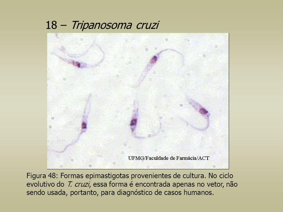 18 – Tripanosoma cruzi Figura 48: Formas epimastigotas provenientes de cultura. No ciclo evolutivo do T. cruzi, essa forma é encontrada apenas no veto