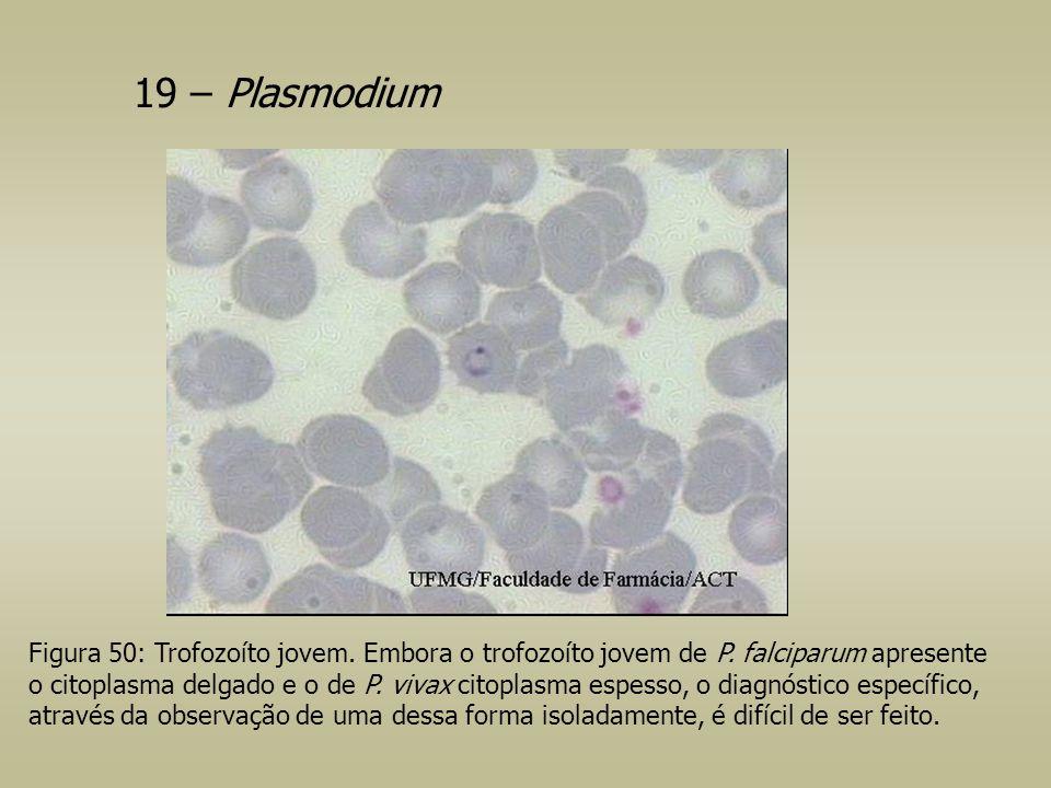 19 – Plasmodium Figura 50: Trofozoíto jovem. Embora o trofozoíto jovem de P. falciparum apresente o citoplasma delgado e o de P. vivax citoplasma espe