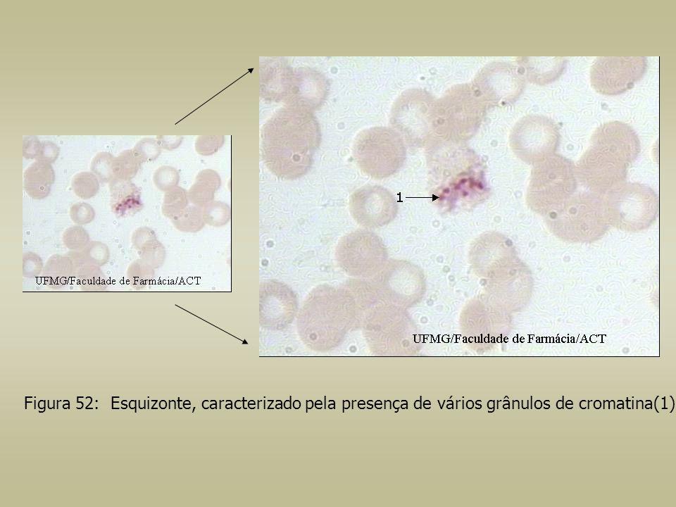Figura 52: Esquizonte, caracterizado pela presença de vários grânulos de cromatina(1).