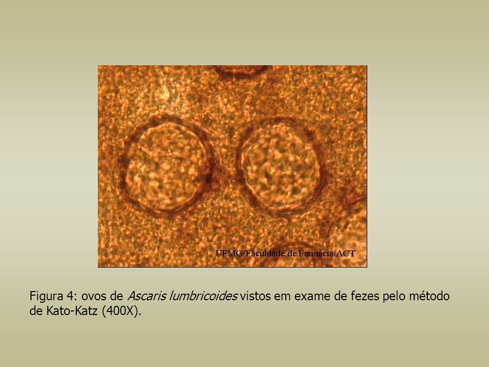 Figura 3: trofozoíto de Balantidium coli (200X). Presença de cílios(1) e vacúolo contrátil(2).