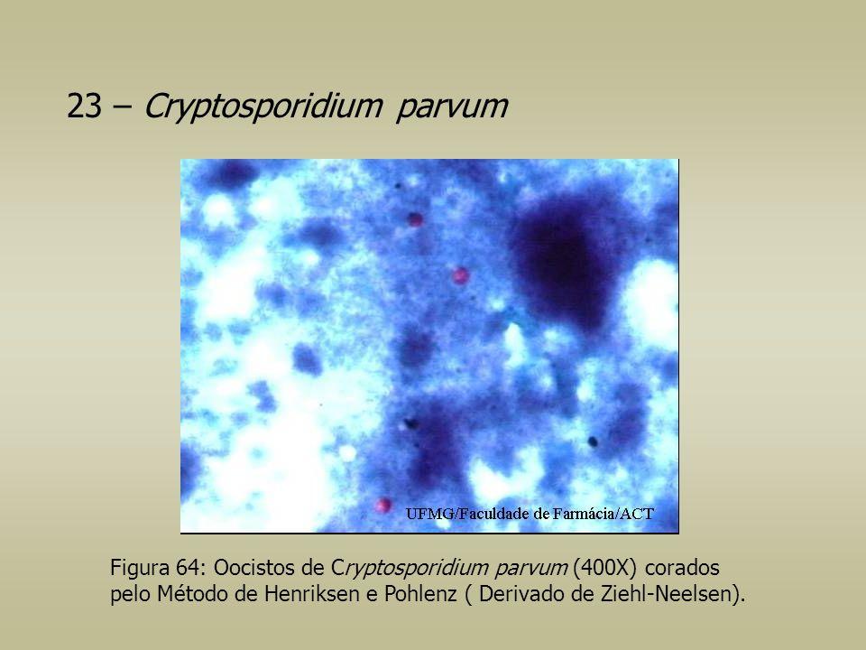 23 – Cryptosporidium parvum Figura 64: Oocistos de Cryptosporidium parvum (400X) corados pelo Método de Henriksen e Pohlenz ( Derivado de Ziehl-Neelse