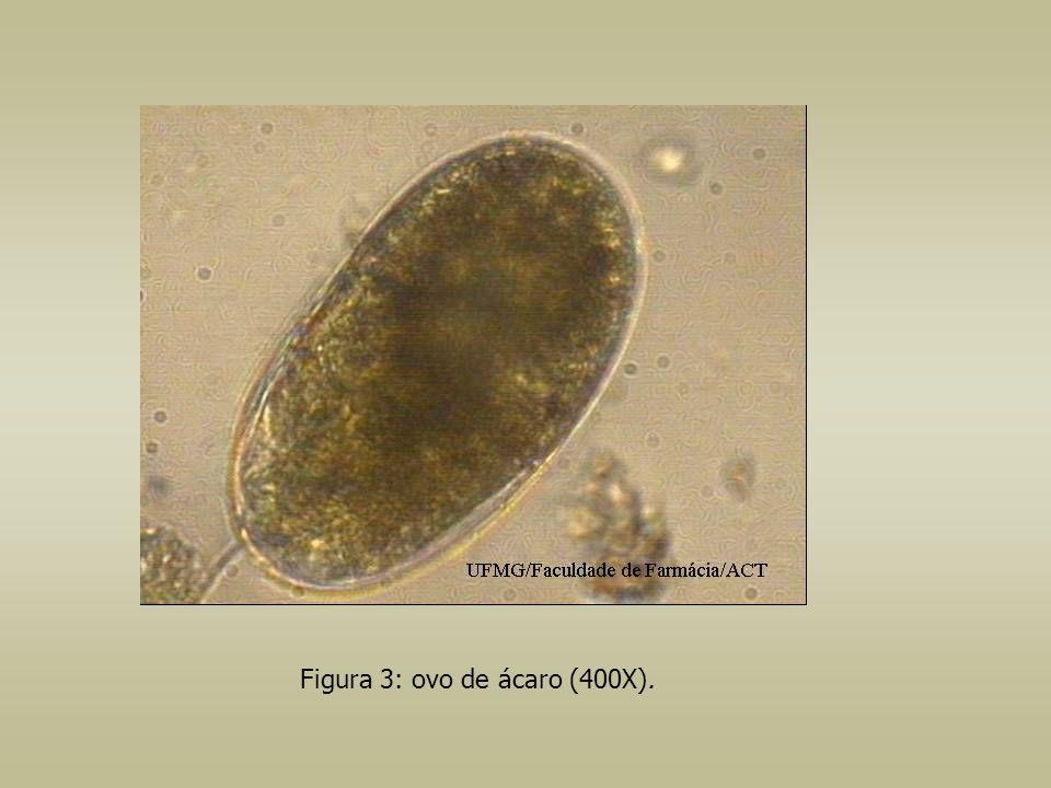 Figura 3: ovo de ácaro (400X).