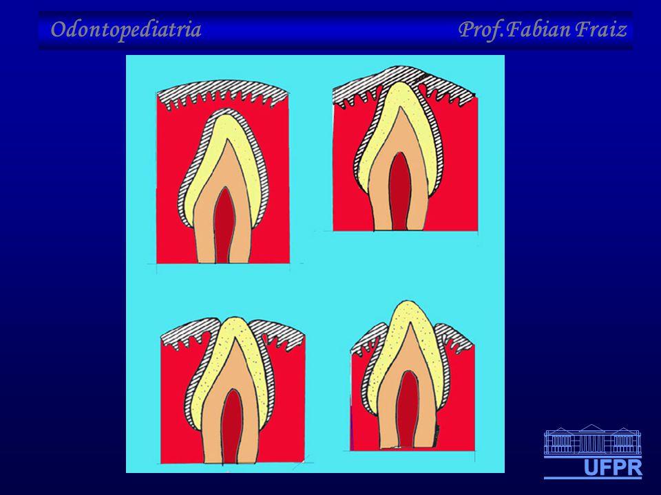 Odontopediatria Prof.Fabian Fraiz