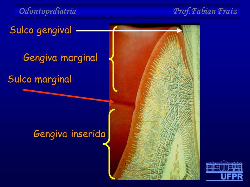 Odontopediatria Prof.Fabian Fraiz Gengiva inserida Gengiva marginal Sulco marginal Sulco gengival