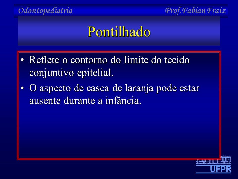 Odontopediatria Prof.Fabian FraizPontilhado •Reflete o contorno do limite do tecido conjuntivo epitelial. •O aspecto de casca de laranja pode estar au