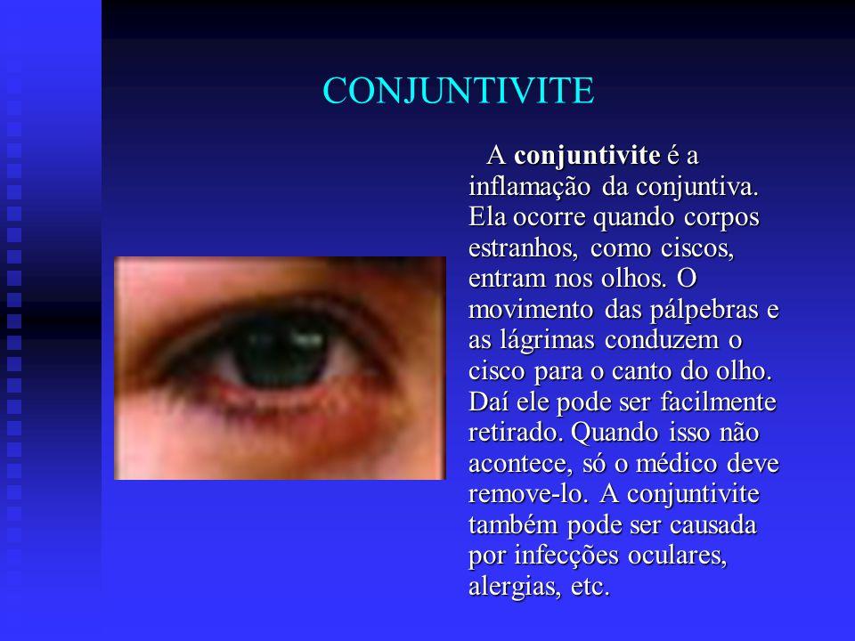 CONJUNTIVITE A conjuntivite é a inflamação da conjuntiva. Ela ocorre quando corpos estranhos, como ciscos, entram nos olhos. O movimento das pálpebras