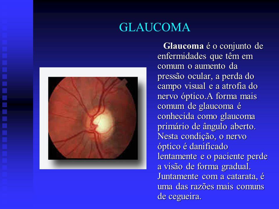 GLAUCOMA Glaucoma é o conjunto de enfermidades que têm em comum o aumento da pressão ocular, a perda do campo visual e a atrofia do nervo óptico.A for