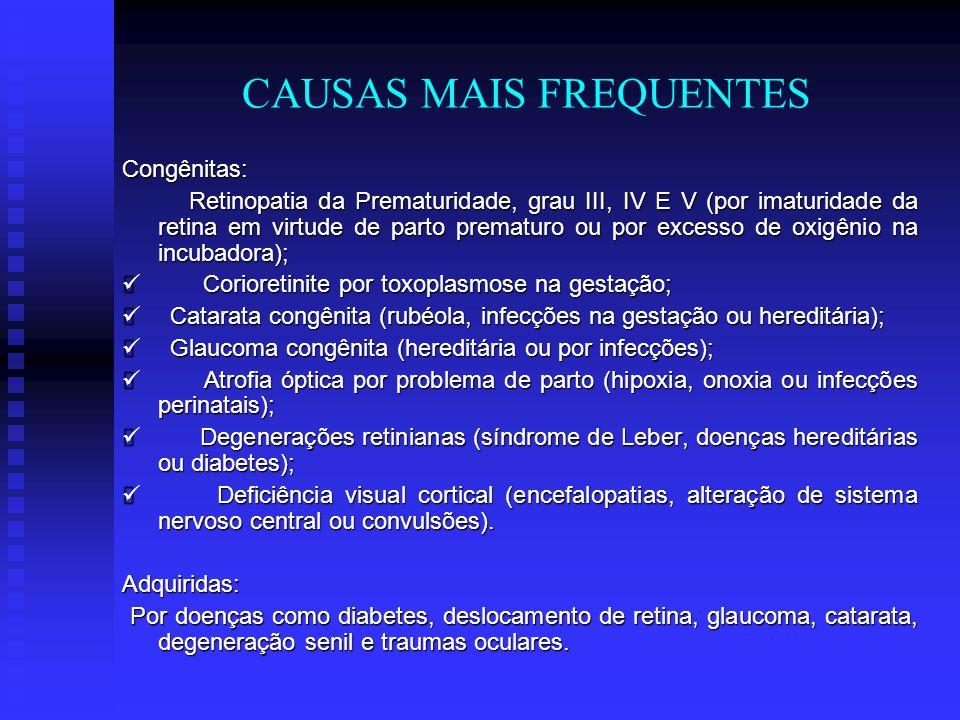 CAUSAS MAIS FREQUENTES Congênitas: Retinopatia da Prematuridade, grau III, IV E V (por imaturidade da retina em virtude de parto prematuro ou por exce
