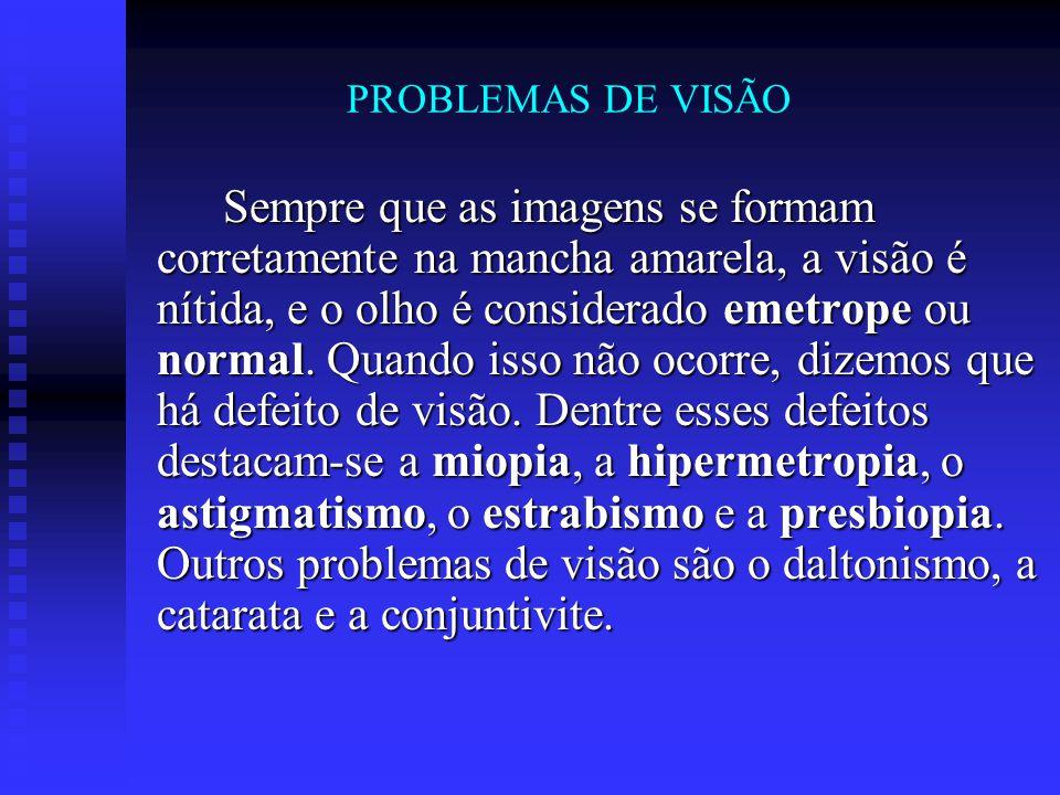 PROBLEMAS DE VISÃO Sempre que as imagens se formam corretamente na mancha amarela, a visão é nítida, e o olho é considerado emetrope ou normal. Quando