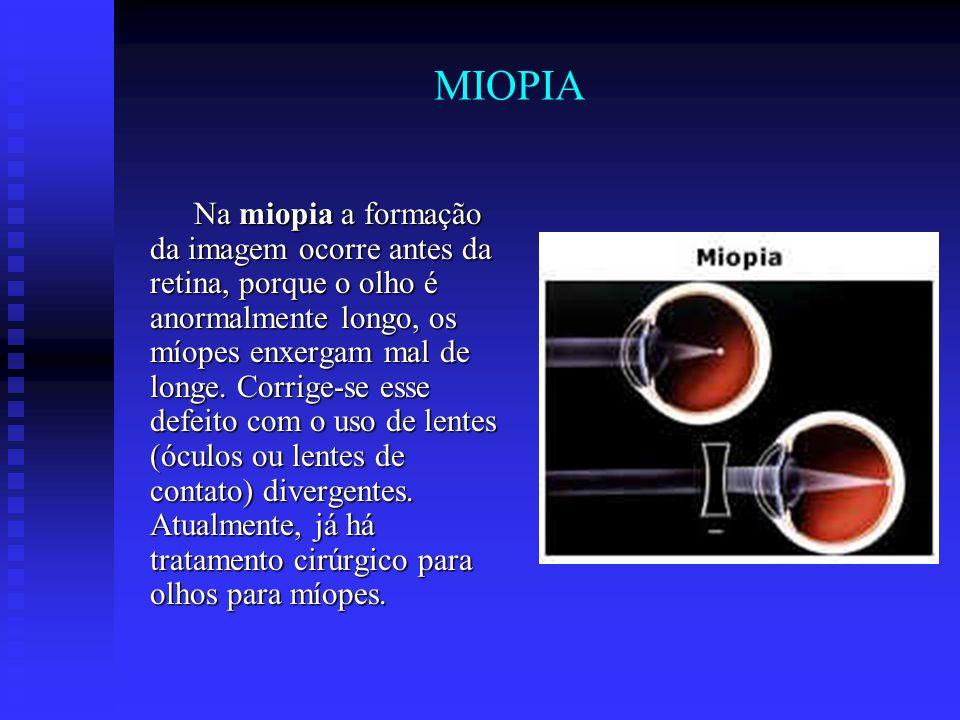 MIOPIA Na miopia a formação da imagem ocorre antes da retina, porque o olho é anormalmente longo, os míopes enxergam mal de longe. Corrige-se esse def