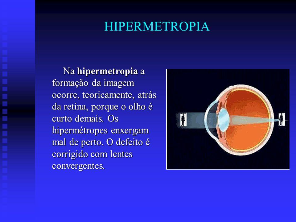HIPERMETROPIA Na hipermetropia a formação da imagem ocorre, teoricamente, atrás da retina, porque o olho é curto demais. Os hipermétropes enxergam mal