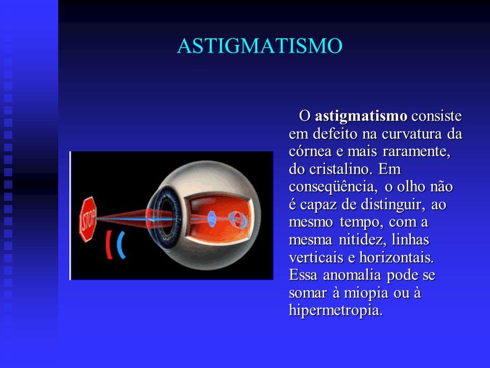 ASTIGMATISMO O astigmatismo consiste em defeito na curvatura da córnea e mais raramente, do cristalino. Em conseqüência, o olho não é capaz de disting