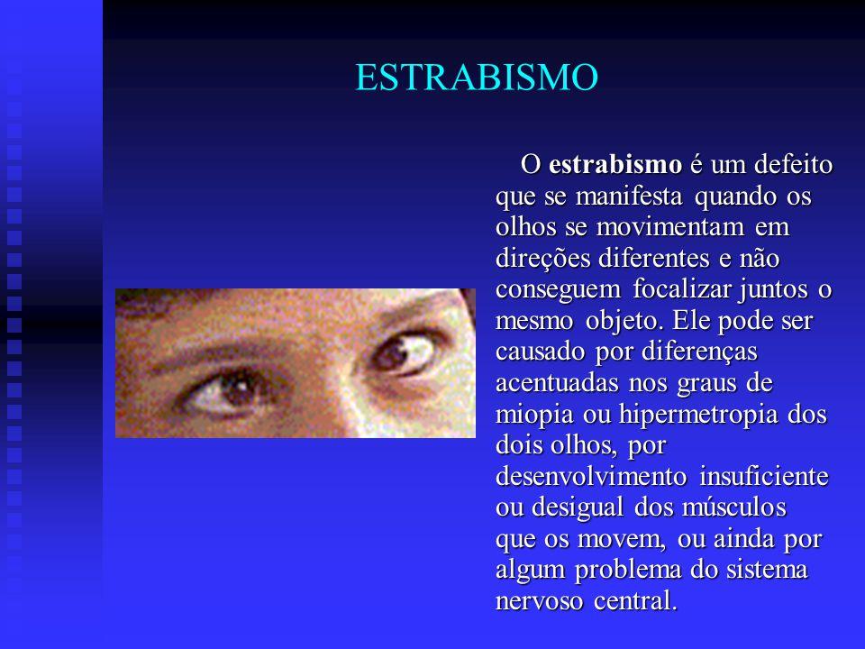 ESTRABISMO O estrabismo é um defeito que se manifesta quando os olhos se movimentam em direções diferentes e não conseguem focalizar juntos o mesmo ob