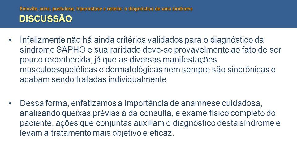 Sinovite, acne, pustulose, hiperostose e osteíte: o diagnóstico de uma síndrome DISCUSSÃO •Infelizmente não há ainda critérios validados para o diagnó