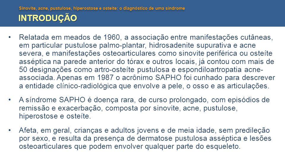 Sinovite, acne, pustulose, hiperostose e osteíte: o diagnóstico de uma síndrome INTRODUÇÃO •Relatada em meados de 1960, a associação entre manifestaçõ