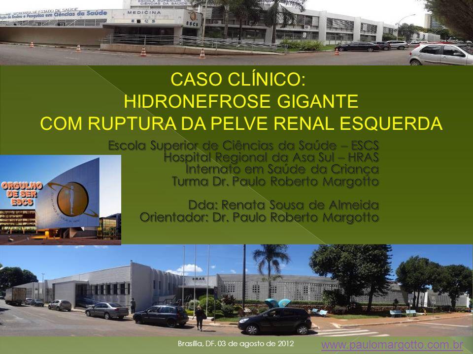 Brasília, DF. 03 de agosto de 2012 1 CASO CLÍNICO: HIDRONEFROSE GIGANTE COM RUPTURA DA PELVE RENAL ESQUERDA www.paulomargotto.com.br