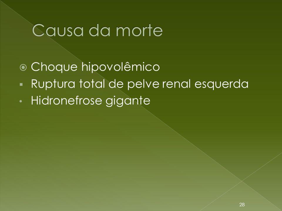  Choque hipovolêmico  Ruptura total de pelve renal esquerda • Hidronefrose gigante 28