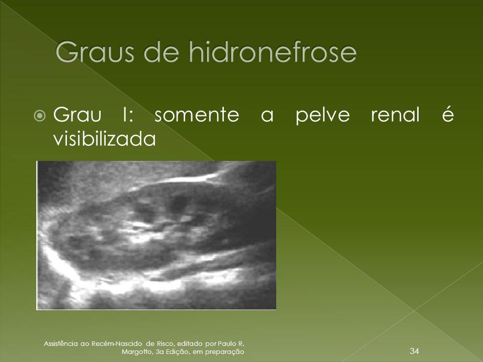  Grau I: somente a pelve renal é visibilizada Assistência ao Recém-Nascido de Risco, editado por Paulo R. Margotto, 3a Edição, em preparação 34