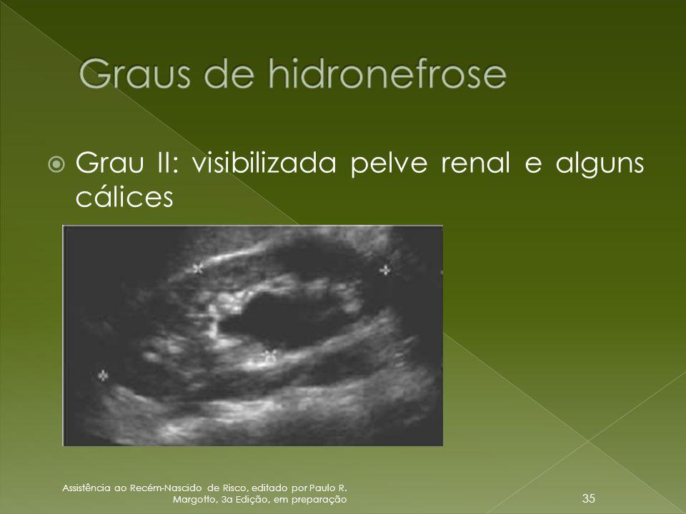  Grau II: visibilizada pelve renal e alguns cálices Assistência ao Recém-Nascido de Risco, editado por Paulo R. Margotto, 3a Edição, em preparação 35