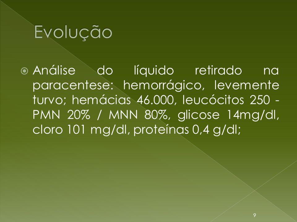  Análise do líquido retirado na paracentese: hemorrágico, levemente turvo; hemácias 46.000, leucócitos 250 - PMN 20% / MNN 80%, glicose 14mg/dl, clor