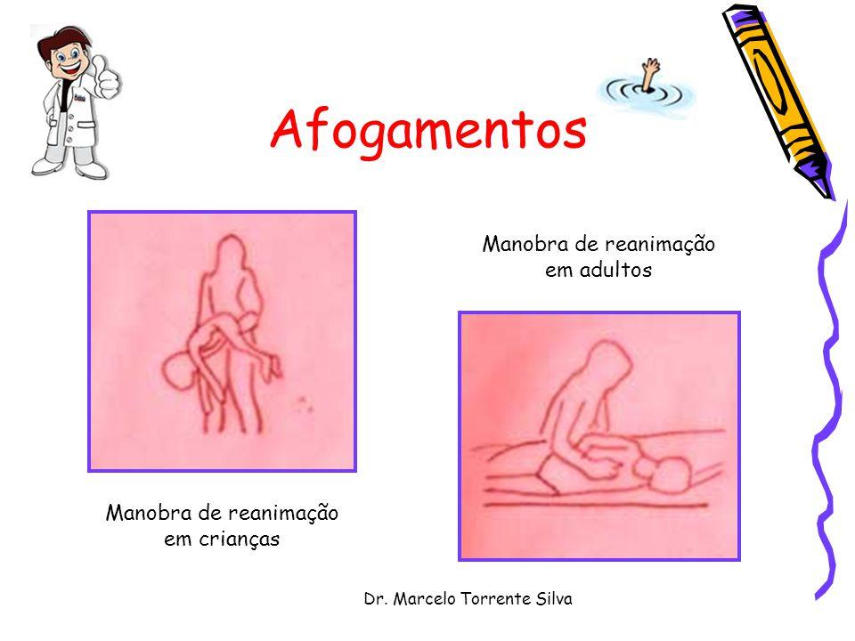 Dr. Marcelo Torrente Silva Afogamentos Manobra de reanimação em crianças Manobra de reanimação em adultos