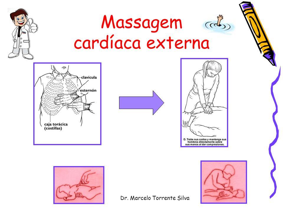 Dr. Marcelo Torrente Silva Massagem cardíaca externa