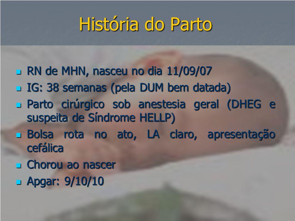 História do Parto  RN de MHN, nasceu no dia 11/09/07  IG: 38 semanas (pela DUM bem datada)  Parto cirúrgico sob anestesia geral (DHEG e suspeita de