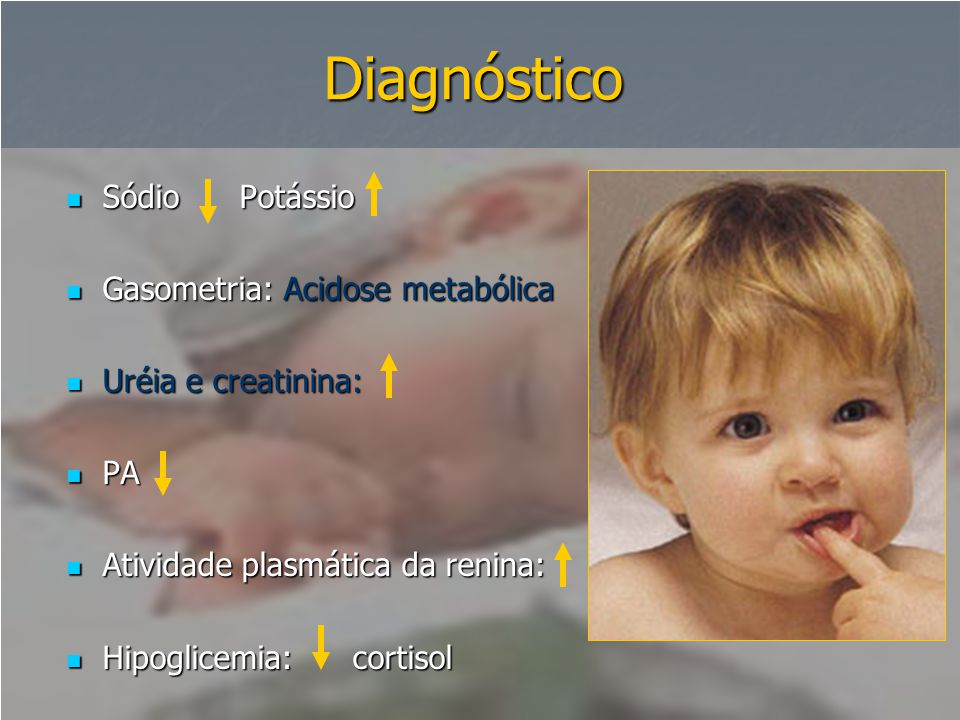 Diagnóstico  Sódio Potássio  Gasometria: Acidose metabólica  Uréia e creatinina:  PA  Atividade plasmática da renina:  Hipoglicemia: cortisol