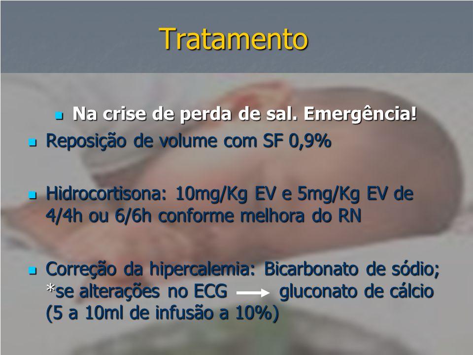 Tratamento  Na crise de perda de sal. Emergência!  Reposição de volume com SF 0,9%  Hidrocortisona: 10mg/Kg EV e 5mg/Kg EV de 4/4h ou 6/6h conforme