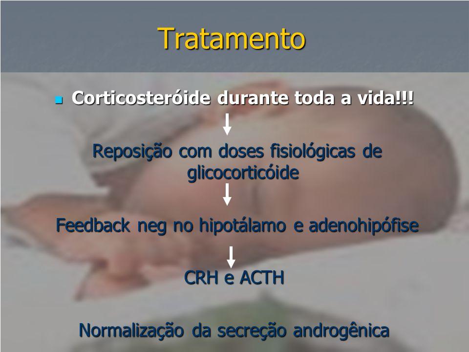 Tratamento  Corticosteróide durante toda a vida!!! Reposição com doses fisiológicas de glicocorticóide Reposição com doses fisiológicas de glicocorti