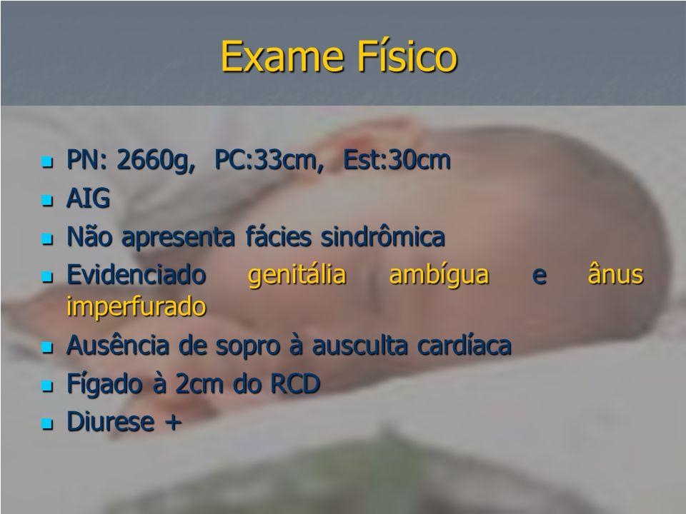 Exame Físico  PN: 2660g, PC:33cm, Est:30cm  AIG  Não apresenta fácies sindrômica  Evidenciado genitália ambígua e ânus imperfurado  Ausência de s