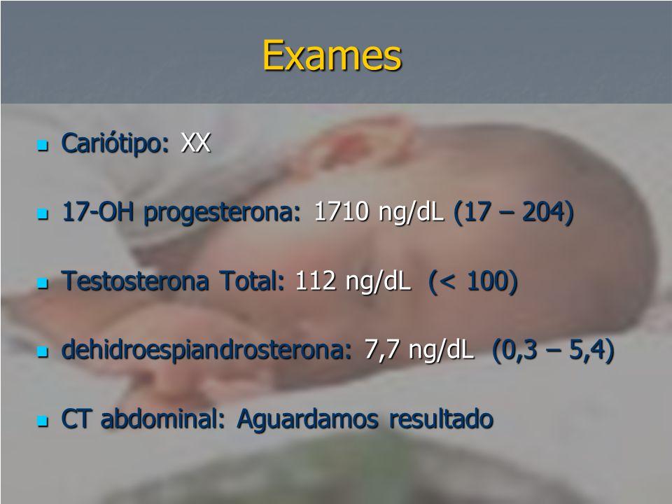 Exames  Cariótipo: XX  17-OH progesterona: 1710 ng/dL (17 – 204)  Testosterona Total: 112 ng/dL (< 100)  dehidroespiandrosterona: 7,7 ng/dL (0,3 –