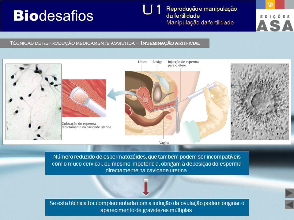 Biodesafios 12 Técnicas de reprodução medicamente assistida – Inseminação artificial Número reduzido de espermatozóides, que também podem ser incompat