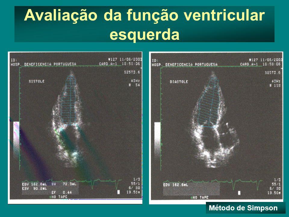 Avaliação da função ventricular esquerda Método de Simpson
