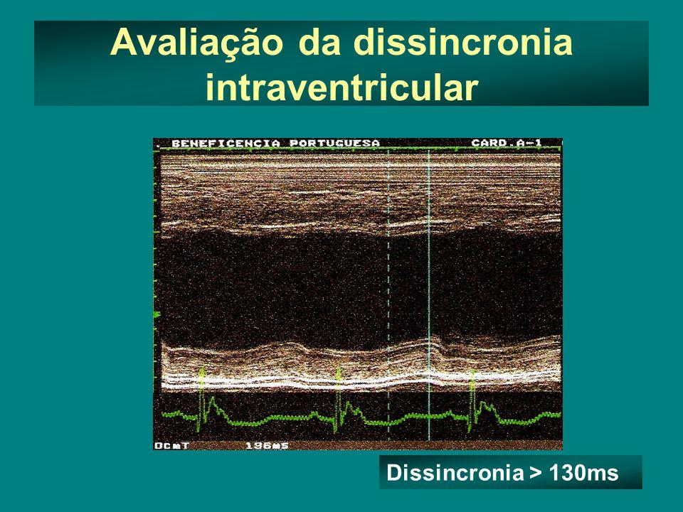 Avaliação da dissincronia intraventricular Dissincronia > 130ms