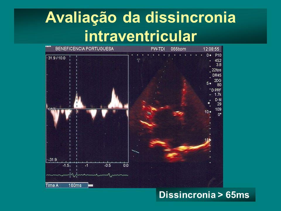 Avaliação da dissincronia intraventricular Dissincronia > 65ms