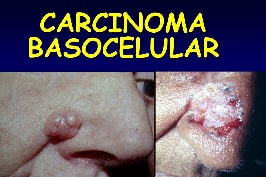 CARCINOMABASOCELULAR