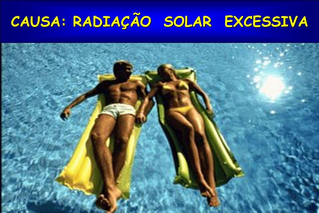 CAUSA: RADIAÇÃO SOLAR EXCESSIVA