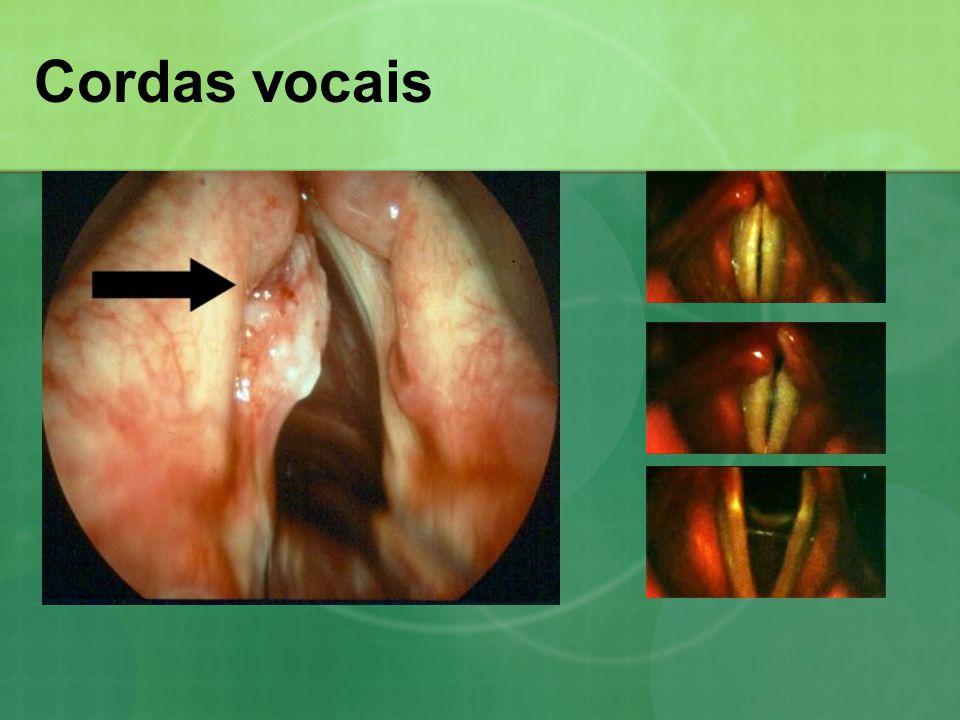 Cordas vocais