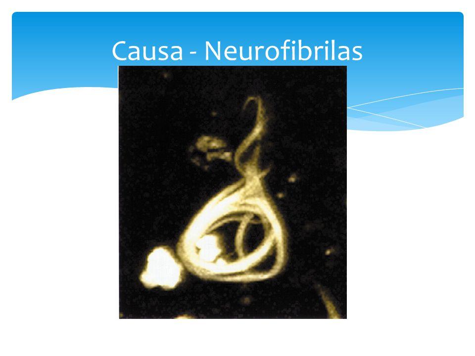 Causa - Neurofibrilas