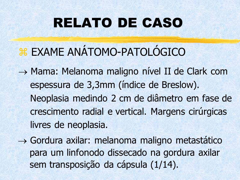 RELATO DE CASO z EXAME ANÁTOMO-PATOLÓGICO  Gordura axilar: melanoma maligno metastático para um linfonodo dissecado na gordura axilar sem transposiçã