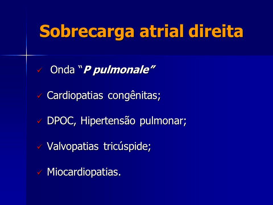 """Sobrecarga atrial direita Sobrecarga atrial direita  Onda """"P pulmonale""""  Cardiopatias congênitas;  DPOC, Hipertensão pulmonar;  Valvopatias tricús"""