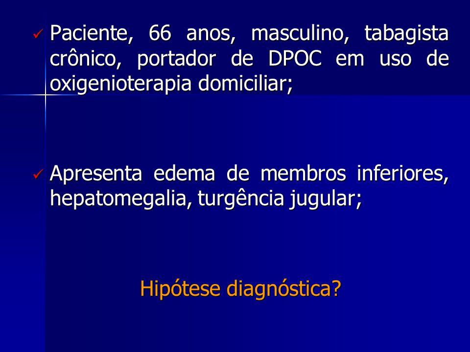  Paciente, 66 anos, masculino, tabagista crônico, portador de DPOC em uso de oxigenioterapia domiciliar;  Apresenta edema de membros inferiores, hepatomegalia, turgência jugular; Hipótese diagnóstica?