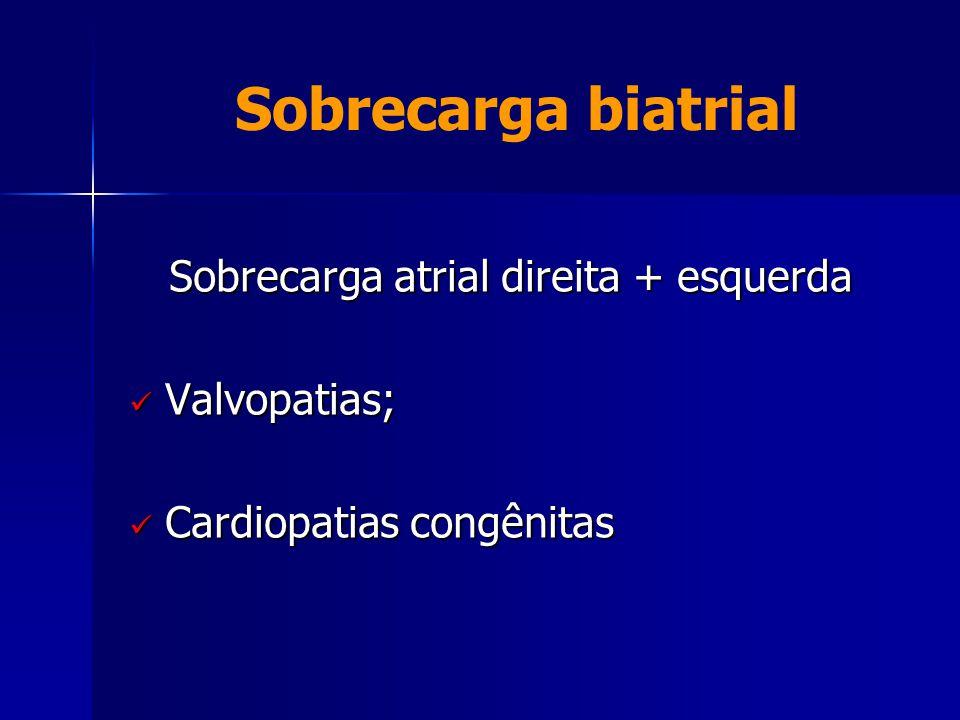 Sobrecarga biatrial Sobrecarga atrial direita + esquerda  Valvopatias;  Cardiopatias congênitas