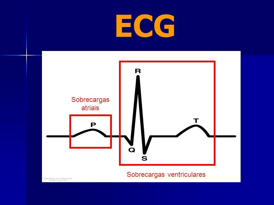 ECG Sobrecargas atriais Sobrecargas ventriculares