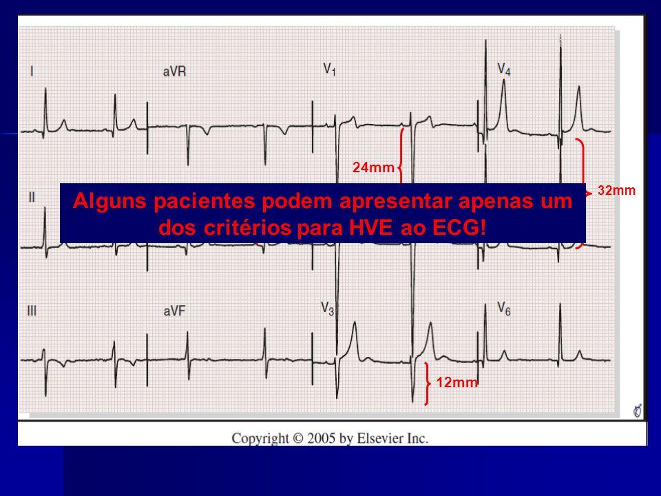32mm 24mm 12mm 10mm Alguns pacientes podem apresentar apenas um dos critérios para HVE ao ECG!