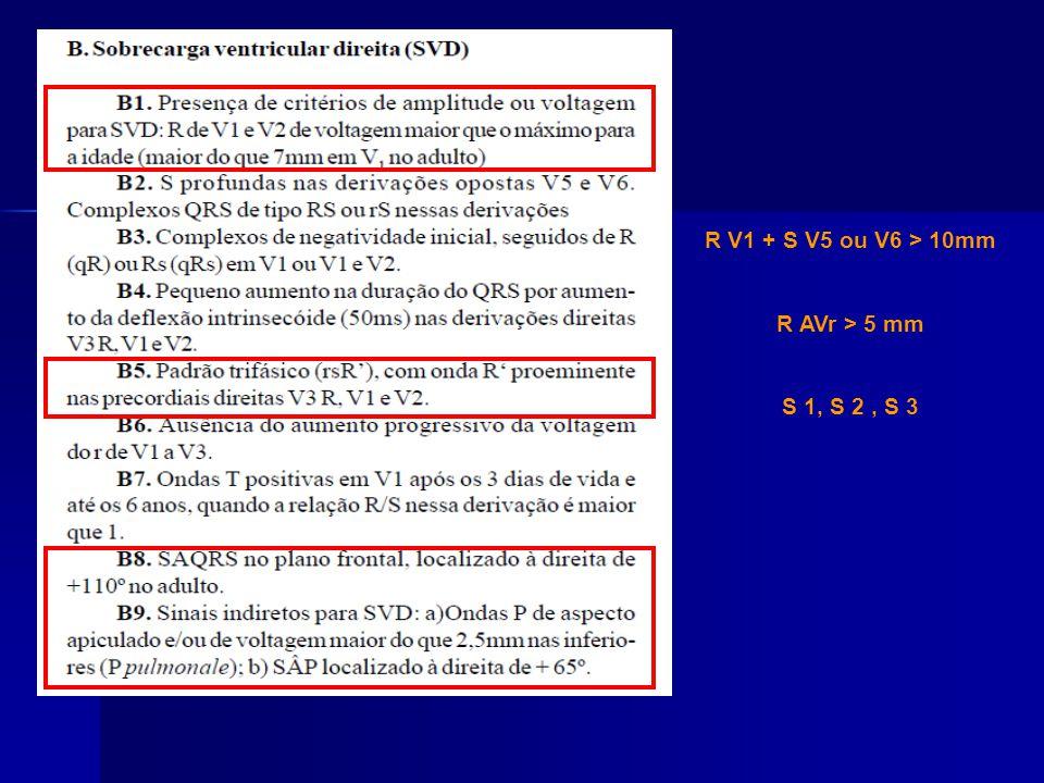 R V1 + S V5 ou V6 > 10mm R AVr > 5 mm S 1, S 2, S 3