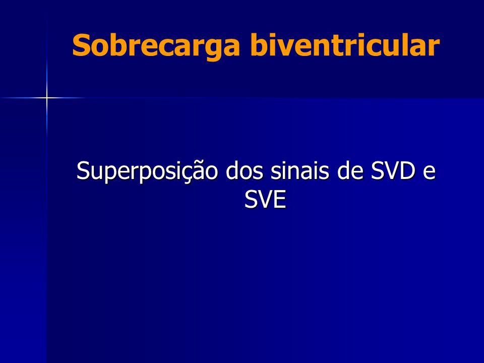 Sobrecarga biventricular Superposição dos sinais de SVD e SVE