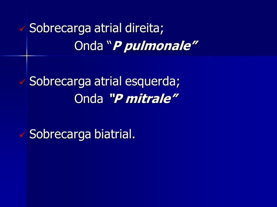 " Sobrecarga atrial direita; Onda ""P pulmonale""  Sobrecarga atrial esquerda; Onda ""P mitrale""  Sobrecarga biatrial."